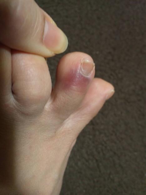 ただいましてバルスに間に合ったwww そして右足の薬指突き指したwww