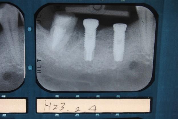 2011年2月の1度目の手術時のレントゲン写真